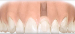 Dental Implant Single Tooth Replacement